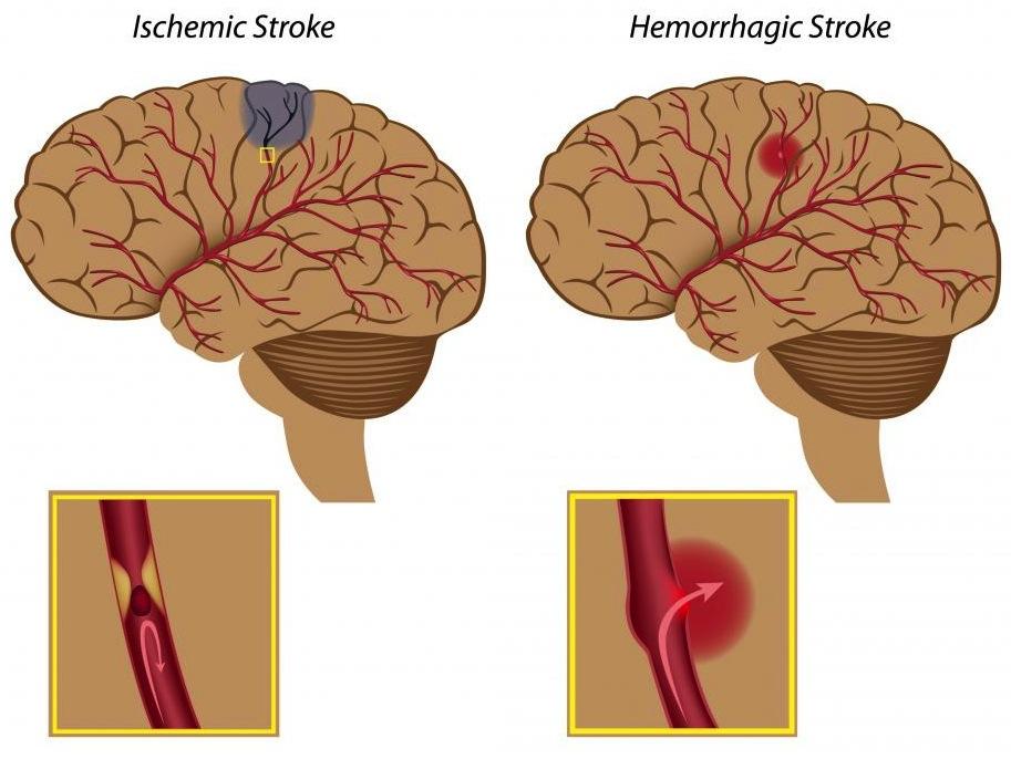 diagram-of-brain-strokes